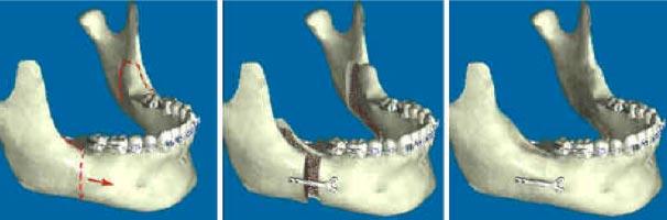 """Questa figura mostra quella che tecnicamente si definisce """"osteotomia sagittale della mandibola"""". Usando questa metodica di separazione dell'osso mandibolare si può ottenere sia l'allungamento, che l'accorciamento della mandibola. E'da sottolineare che gli interventi vengono eseguiti all'interno della bocca, senza produrre cicatrici esterne."""