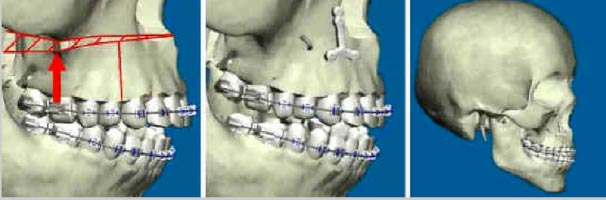 Il mascellare può essere spostato in alto, in basso, in avanti e, in casi molto particolari, anche indietro. Tutto questo viene fatto praticando una sezione dell'osso come segnato in rosso. Questa metodica si definisce osteotomia secondo LeFort I. Per i casi di maggior complessità vengono effettuati altri tipi di osteotomia (LeFort II e LeFort III) che sono eseguiti nelle parti più alte e che coinvolgono anche le strutture oculari. Nella chirurgia ortognatodontica la LeFort I è quella usata di routine. Il mascellare, una volta riposizionato secondo il progetto, viene fissato mediante placche e viti come mostra la figura al centro.