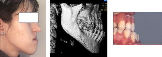 Esempio di malaocclusione scheletrica-dentale di Classe III