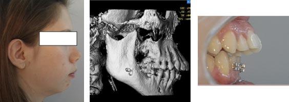 Esempio di malaocclusione scheletrica-dentale di Classe II