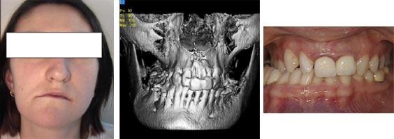 Esempio di severa asimmetria facciale ed importante difetto trasversale del mascellare