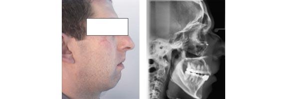 Esempio di difetto verticale. Da notare la disfunzione dei muscoli del mento dovuta allo sforzo che il paziente deve compiere per poter stare con la bocca chiusa. Questa condizione, oltre a causare  instabilità a livello occlusale, comporta un costante ipertono dei muscoli facciali ed è una possibile causa di mal di testa, in particolare nell'area fronto-temporale.
