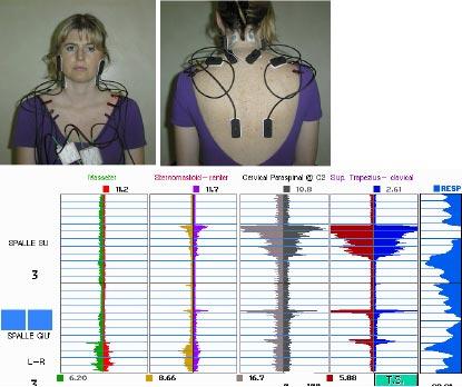 Questo gruppo di foto mostra la preparazione del paziente per l'esame ed un esempio di  registrazioni sEMG relative ai muscoli del complesso cervico-dorso-facciale.