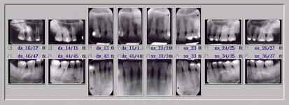 Radiografie endo-orali (sistematica della bocca)