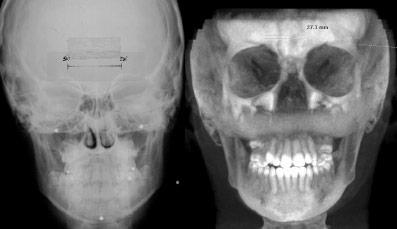 radiografia frontale cranio