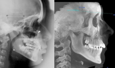 radiografia laterale cranio