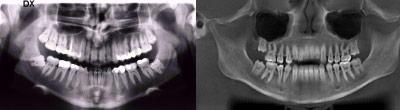 Radiografia panoramica delle arcate (Ortopantomografia): A sinistra convenzionale, a destra ricavata dai dati volumetrici.