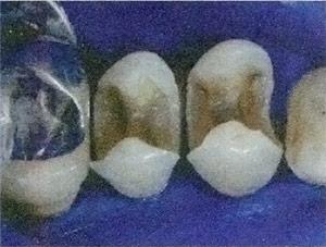 restauro-dentale-02