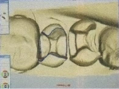 restauro-dentale-04
