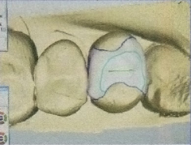 restauro-dentale-05